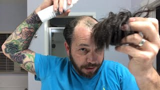 Is The Hair Coming Out Of The Other Side Of Your Hair Replacement or Hair System?  How To Fix It!