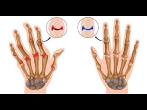 Osteocondrosis cervical qué ejercicios puede hacer