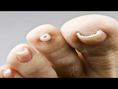 Como determinar el hongo en los pies