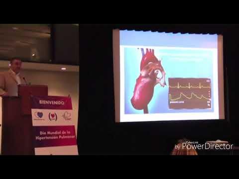 Pulso elevada bajo presión sanguínea reducida