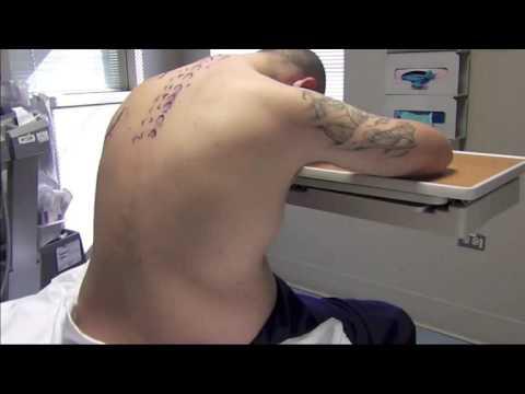 Behandlung von Osteoarthritis der Hüfte 3 Grad