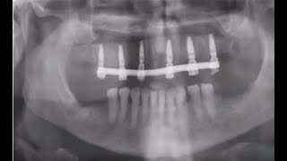 Teeth in a Day with MIS V3 Implants