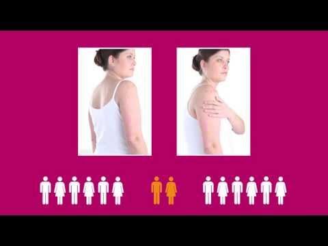 Chistotet in cura di eczema