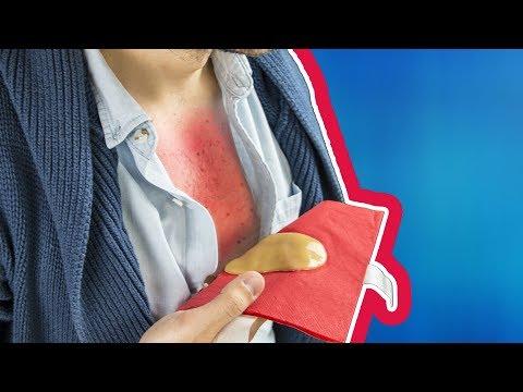 Farmaci per vermi quando allattamento al seno