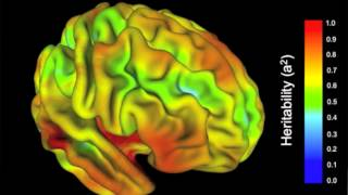 Why Delayed Onset Of Mental Illness? Genes Impact Suspect Brain Areas Late
