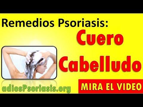 La psoriasis la aromaterapia a la psoriasis