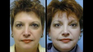 Fox23 Brow & Midface lift by Dr. Williams