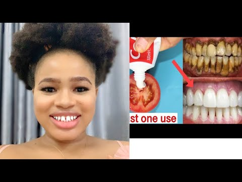 Magical Teeth Whitening Remedy, Get Whiten Teeth at Home in 2 Minutes (LIVE DEMO)