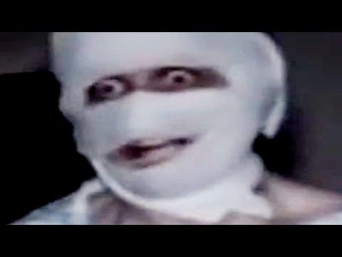 Prostate cyst mri