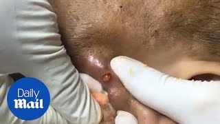 Stomach-churning moment enormous zit on ear is popped