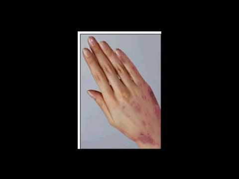 Dottore komarovsky neurodermatitis di video