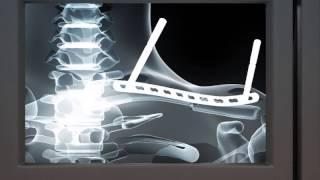 Osteosíntesis con placa bloqueada MIPO de fractura de clavícula