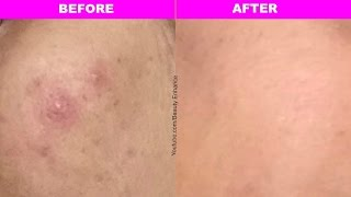 How to get rid of pimples/acne fast (one hour)guar