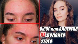 ОЖОГ или АЛЛЕРГИЯ? Что произошло с моим лицом? | DNC гель с алоэ вера