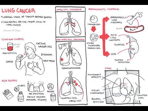 Rak płuc - ogólny zarys