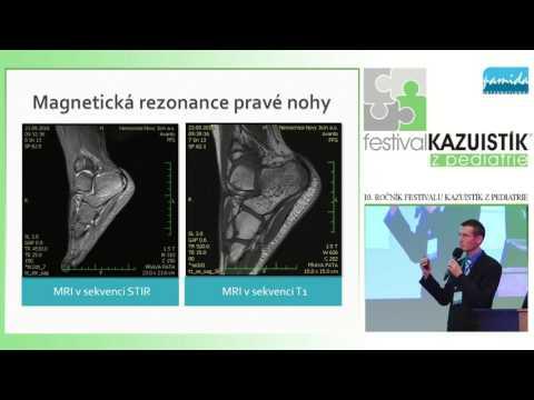 Moderní léčba rakoviny prostaty