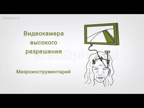 Клиника лазерной микрохирургии глаза в красноярске отзывы