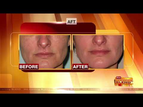 Microneedling, AFT, & the Hollywood Laser Peel