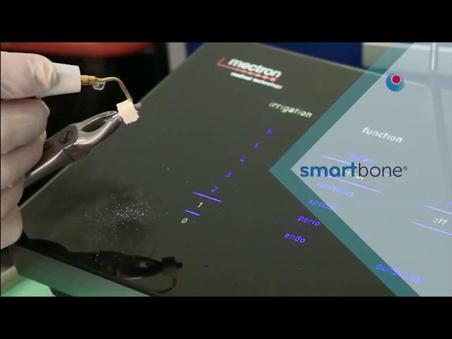 Smartbone + Smartbone on Demand (ITA)