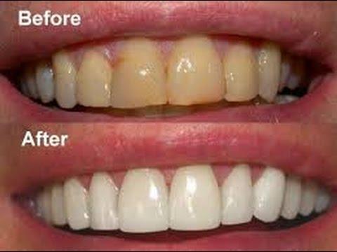 Inilah 13 Cara Memutihkan Gigi Secara Alami Dengan Mudah Ipul
