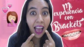 Mi Experiencia Con Brackets | Mes 1 y 2 ♡