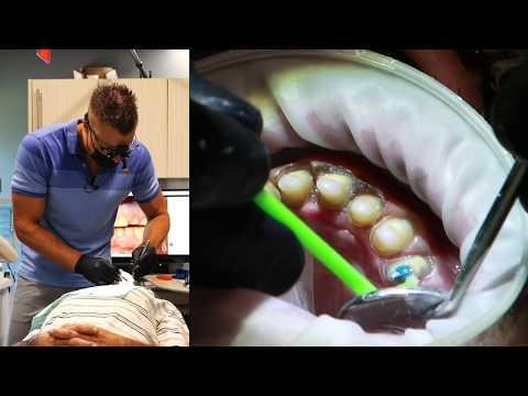 Full Mouth Dental Restoration - LIVE Treatment - Part II