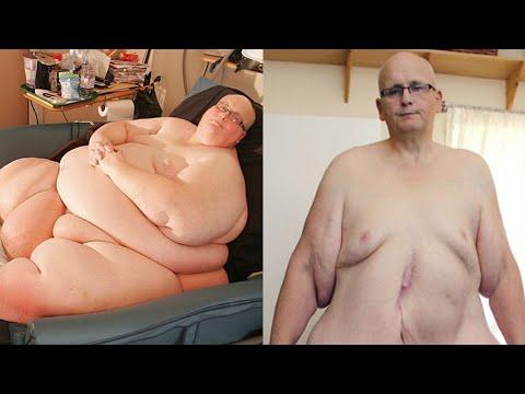 Insentif untuk menurunkan berat badan