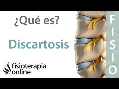 Curvatura di spina dorsale intorno al suo centro del perno