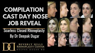 6 patients Scarless Nose (Rhinoplasty) Cast Day with Dr. Deepak Dugar