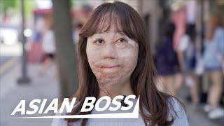 Meet The Korean Girl Who Survived 95% Burns   ASIAN BOSS