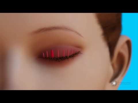 Helminth inváziós blefaritisz, Gyermekek szemében a vörösség okai - Vitaminok - March