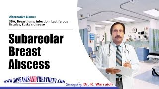 Subareolar Breast Abscess (SBA) : Causes, Diagnosis, Symptoms, Treatment, Prognosis