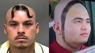 Terrible hairlines