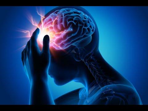 Epilepsi Pili Ameliyatına Dair Herşey (VNS) TRT Radyo Röportajı