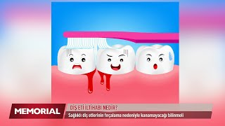 Diş eti problemleri nelerdir, Nasıl önlenir?