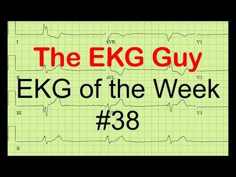 EKG of the Week #38