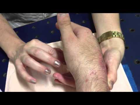 Nizorat de tratamento de um fungo de pregos