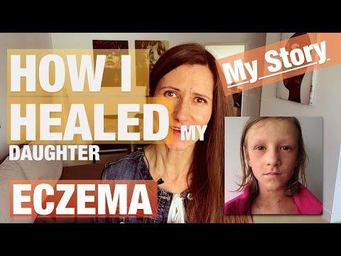 Tratamento de bolhas de eczema