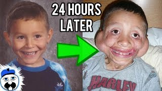 15 Kids Who Survived The Impossible