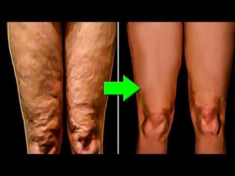 Вы не поверите чем она намазала свою кожу. Это есть у каждого, но никто это не использует.