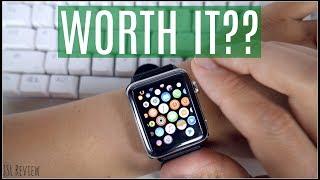 I got an Apple Watch  - Is it worth it??