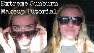 Extreme Sunburn Makeup Tutorial