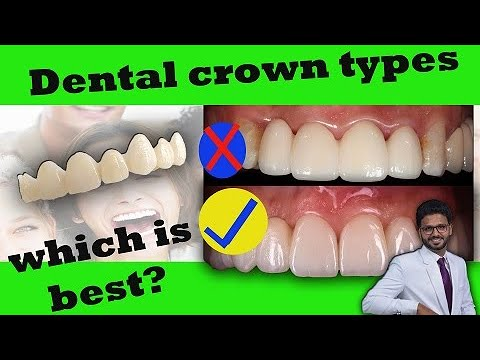 Dental Crowns at Best Price in India