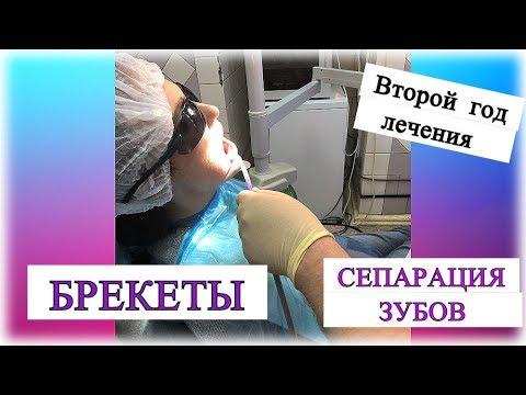 БРЕКЕТЫ ♦ Мучительное лечение ♦Сепарация зубов ♥MamavPudre