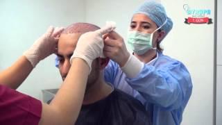 Клиника по пересадке волос Avrupa Sac Ekimi