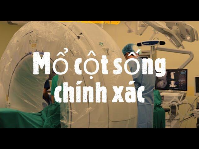 Phẫu thuật cột sống chính xác tại BV Bạch Mai