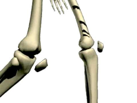 Ostre bóle pleców i prawej stronie