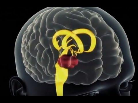 Что происходит с организмом во время стресса