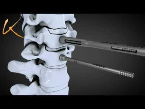 Dolori muscolari attraverso la parte posteriore