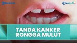 Tanda-tanda Alami Kanker Rongga Mulut, Ini Penjelasan drg. R. Ngt. Anastasia Ririen Pramudyawati